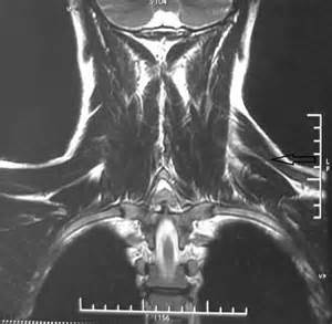 mri and spinal muscle atrophy picture 7