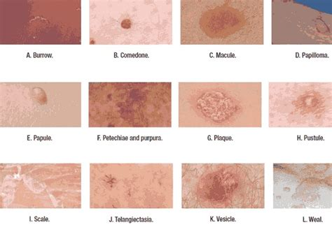 lesions picture 2