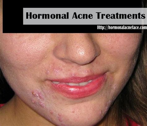 acne in women picture 7