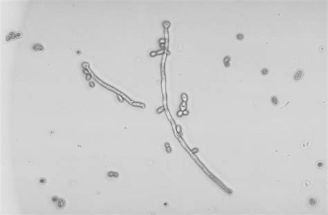 yeast in urine picture 19