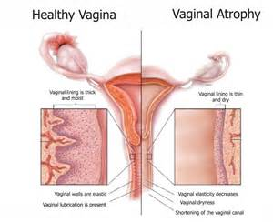vagina atrophy and your liver picture 1
