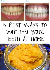 best way to clean dentures at home picture 8