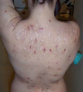 meth skin disorders picture 6