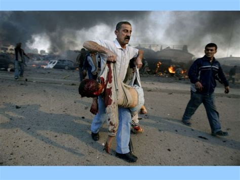 iraq wart casualties picture 6