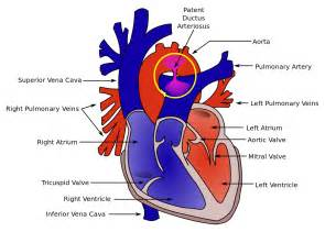 reverse blood flow in infant picture 15