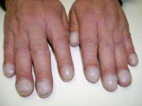 lip swelling finger nuckle swelling weight loss loww fever anemia picture 10