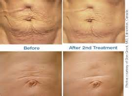 skin tightening treatment the titan picture 2