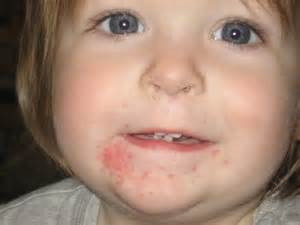 treatment for yeast rash under 's chin picture 2