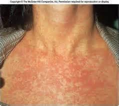 airborne skin virus picture 6