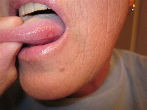 herpes on the tip of the tonque pictures picture 4