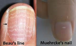 white line in nail picture 1