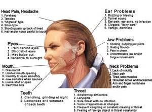 headache clenching teeth picture 11