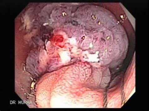 cancerous polop in colon picture 14