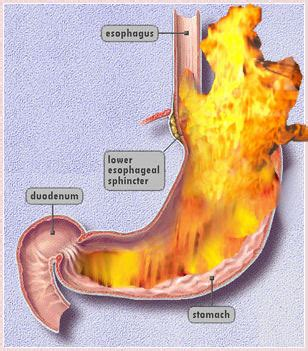 all the symptoms of indigestion picture 6