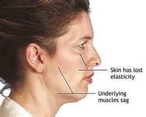 drug for sagging skin picture 11