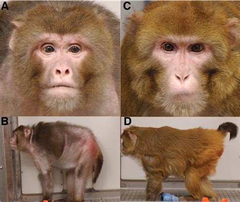caloric restriction and aging and skin picture 10