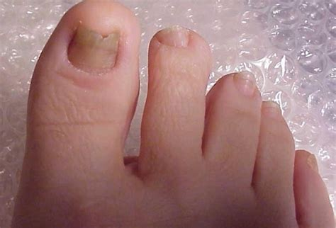 nail fungus therapy picture 6