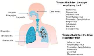 bacterial infections in the elderly picture 9