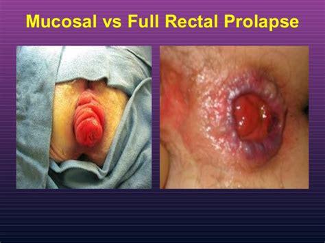 hemorrhoid prolapse picture 10