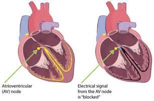 carditis picture 2