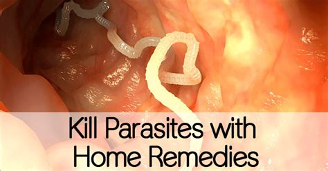 intestinal parasites natural remedy picture 3