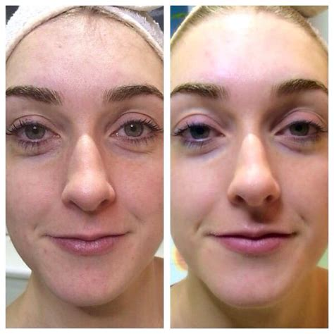 acne scarring treatment picture 5