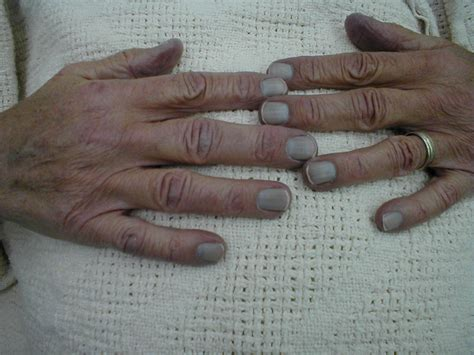 diabetes and skin diseases picture 3