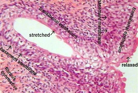 full stretch bladder picture 18