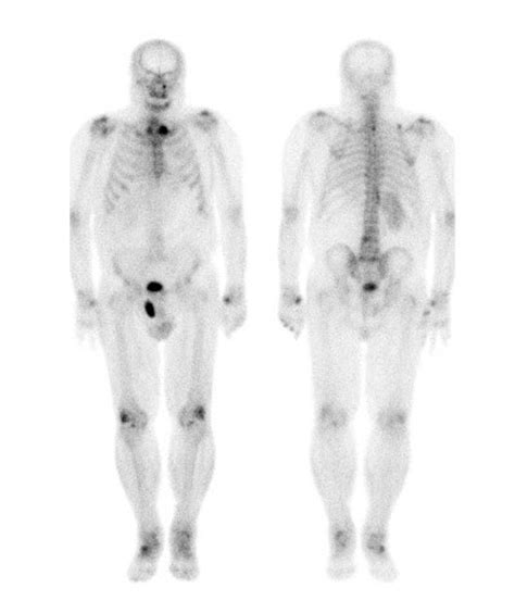 full bladder on a bone scan picture 5