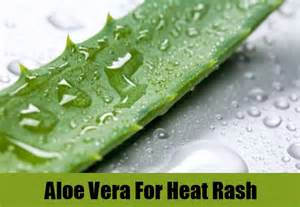 aloe vera and hives relief 2015 picture 1