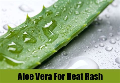 aloe vera and hives relief 2015 picture 6