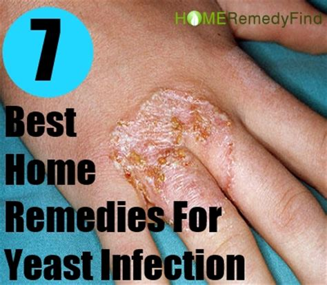 home remedies for yeast infection picture 15