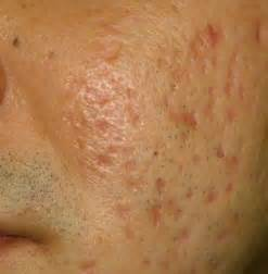 acne over the counter picture 3