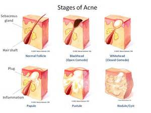 nodnuel cystic acne medical definition picture 22