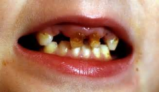 babies rotten teeth picture 6
