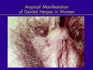female genital herpes pics picture 7