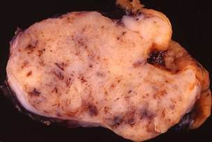 gastrointestinal stromal cancer picture 6