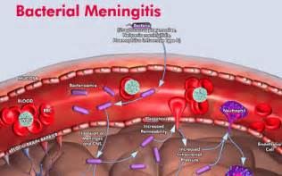 bacterial meningjitis picture 6