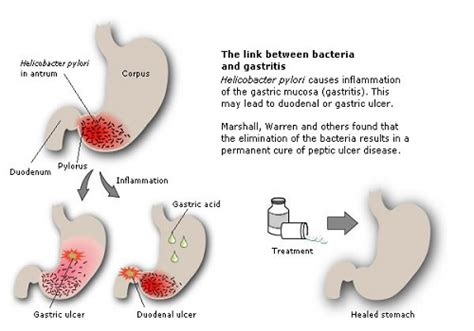 hemroids medicine in the philippines picture 10