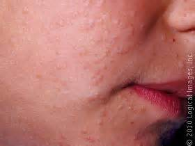 skin rashes warts picture 19