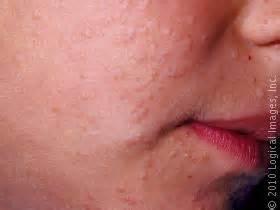 fleshy colored skin virus picture 14