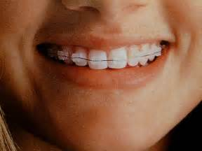 clear teeth brace picture 11