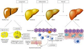 alcoholic liver disease with representation picture 18