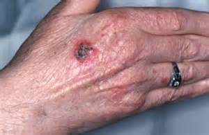 pictures of malignant skin cancers picture 7