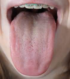 warts on back of tounge picture 17