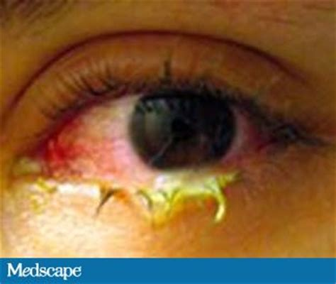 pus in the eye medical term picture 7