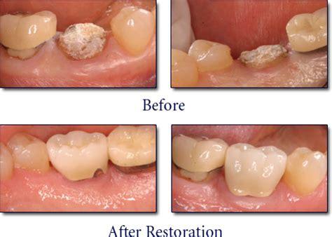 new york teeth whitening picture 13