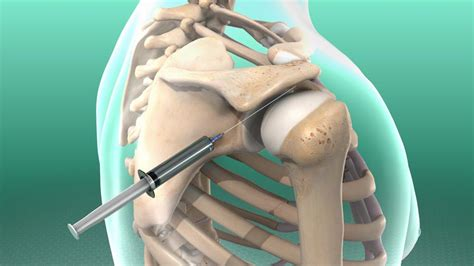 facet joint nerve ablation picture 19