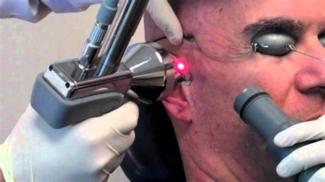 new york male laser hair removal picture 5