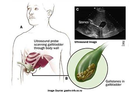 gallbladder intestinal pain picture 11